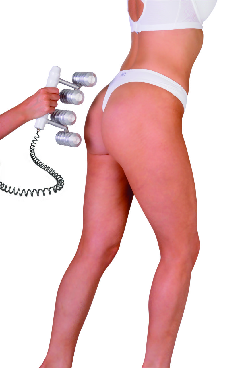 CACI Electro Cellulite Massager Watford
