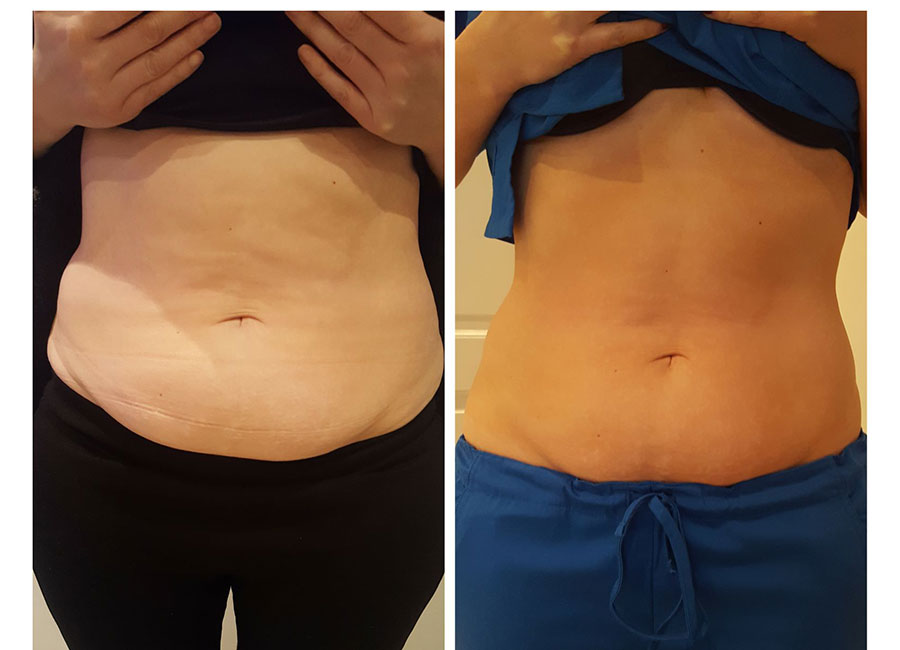 non-surgical liposuction results