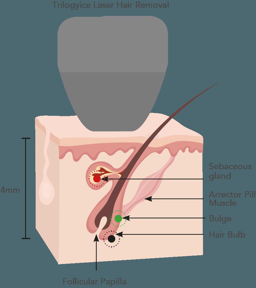 Laser hair removal watford