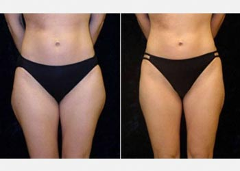 3D lipo fat freezing results