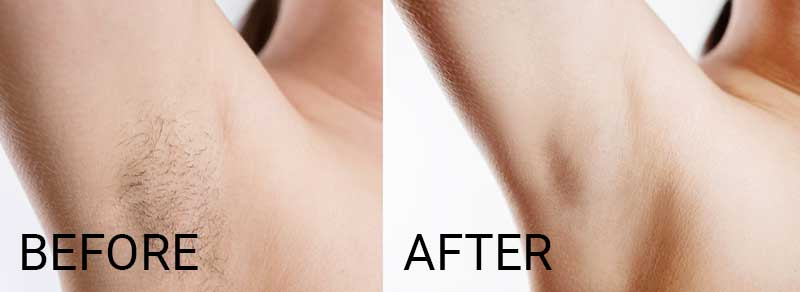 before and after of laser hair removal